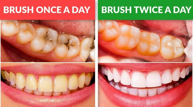 Why You Should Brush Your Teeth Twice a Day